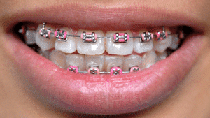 Traditional metal braces Boyd Orthodontics in Columbia SC