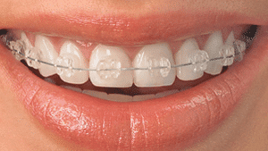 Ceramic Braces Columbia SC at Boyd Orthodontics