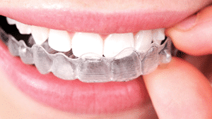 Invisalign at Boyd Orthodontics in Columbia SC