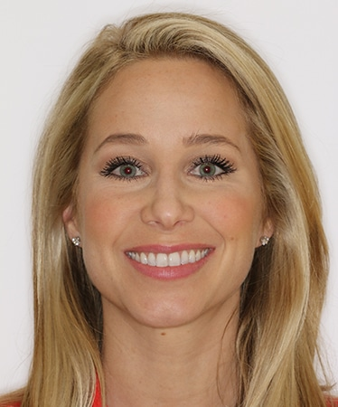 Dr Richard Boyd Orthodontics Columbia SC Darcy Earhardt After Photo