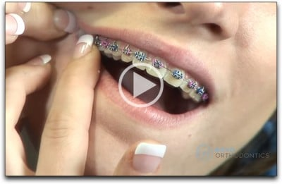 Dr Richard Boyd Orthodontics Columbia SC Homecare Video thumbnail