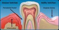 Gum Disease Myths Debunkes Columbia SC
